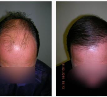 imagen de Caso real trasplante capilar clinica renacimiento Marbella 4