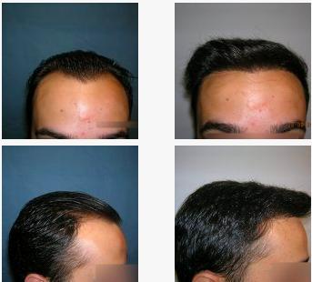 imagen de Caso real trasplante capilar clinica renacimiento Marbella 3