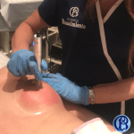 image of how to remove stretch marks from the chest clinic renaissance madrid