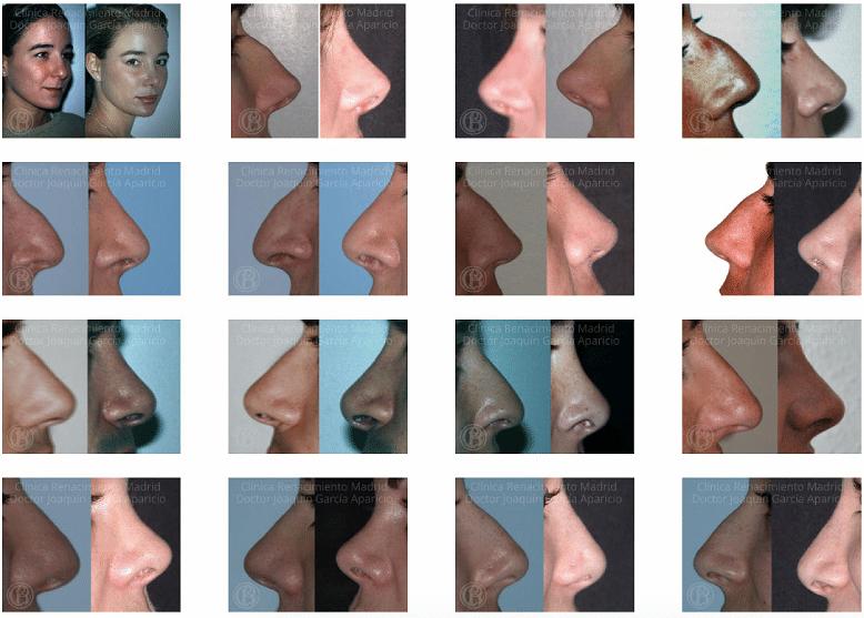 imagen de Casos reales antes y despues cirugia de nariz rinoplastia clinica renacimiento madrid