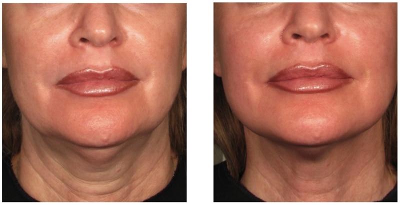imagen de HIFU Facial casos reales clinica renacimiento madrid