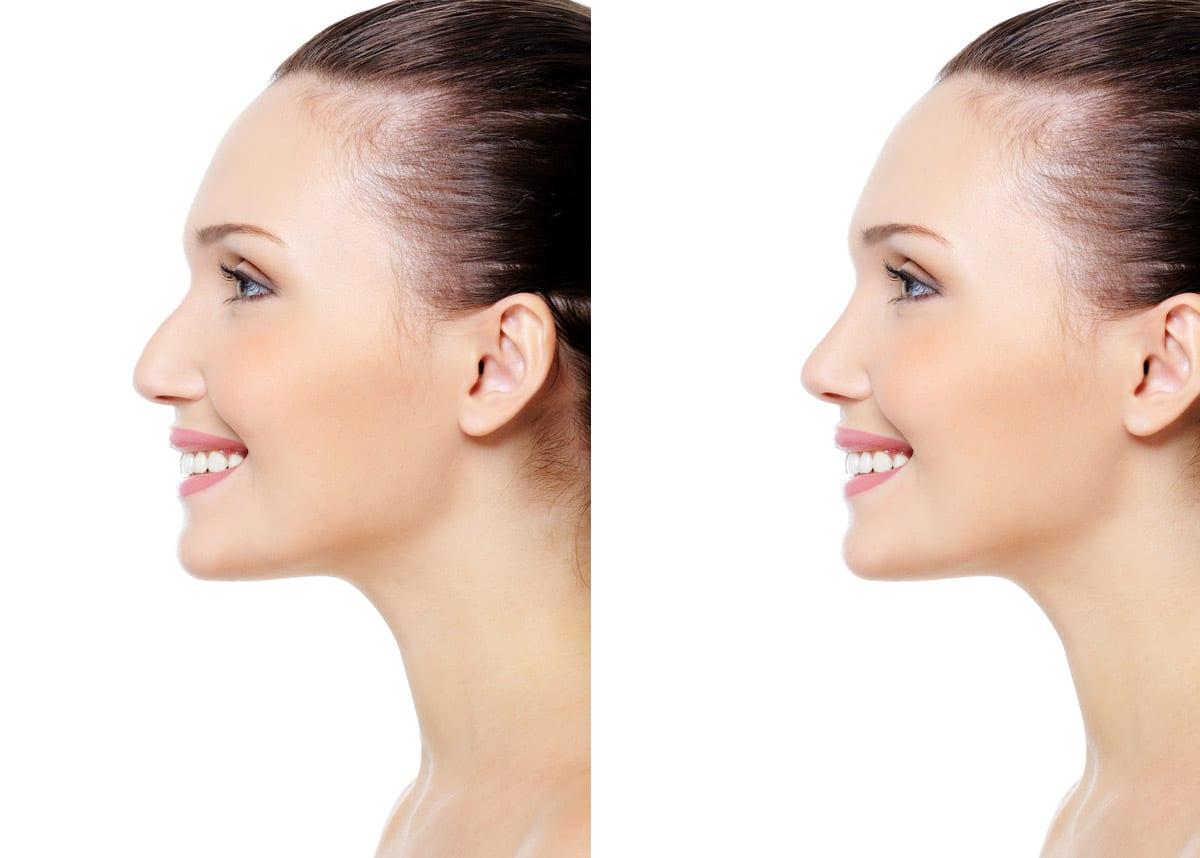 imagen de RINOPLASTIA antes y despues clinica renacimiento madrid