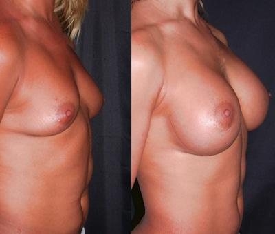 imagen de aumento de senos renacimiento madrid 2