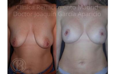 imagen de caso real antes y despues elevacion de senos clinica renacimiento madrid 8