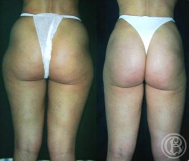 imagen de caso real antes y despues lipoescultura clinica renacimiento madrid 2
