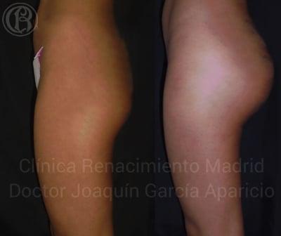 imagen de caso real antes y despues protesis de gluteos clinica renacimiento madrid 2
