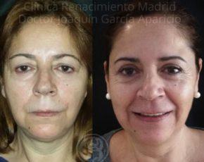 imagen de casos blefaroplastia antes y despues clinica renacimiento madrid