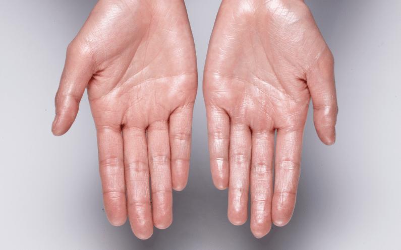 imagen de casos hiperhidrosis clinica renacimiento madrid