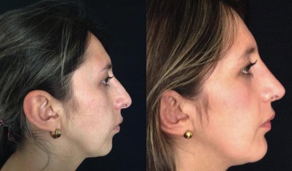 image of cases real mentoplasty clinic renaissance madrid doctor joaquin garcia aparicio