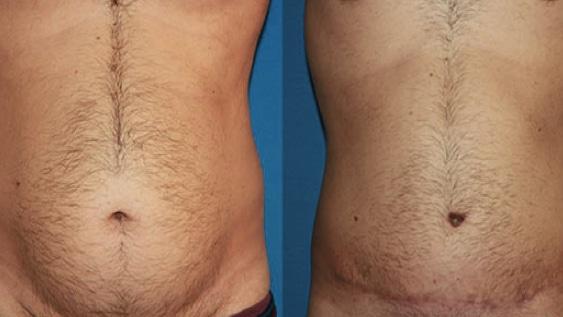imagen de casos reales cirugia de abdomen abdominoplastia clinica renacimiento madrid