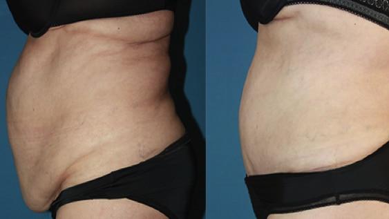 imagen de casos reales cirugia de abdomen clinica renacimiento madrid