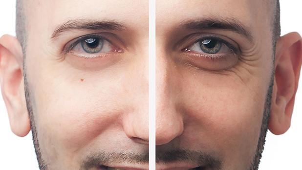 imagen de casos reales corrección de arrugas clinica renacimiento madrid