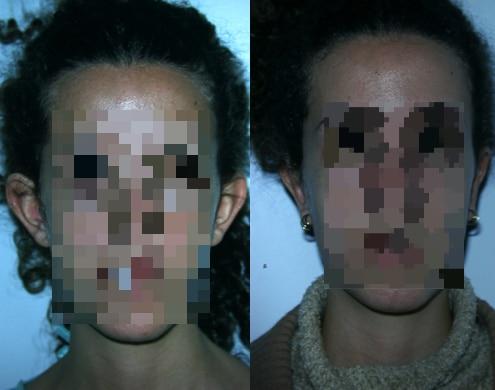 imagen de cirugia de OREJA otoplastia antes y despues clinica renacimiento madrid 3