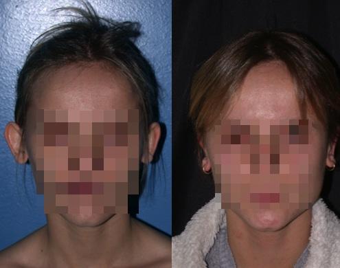 imagen de cirugia de OREJA otoplastia antes y despues clinica renacimiento madrid 4