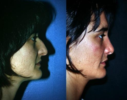 imagen de cirugia de nariz rinoplastia antes y despues clinica renacimiento madrid 2
