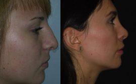imagen de cirugia de nariz rinoplastia antes y despues clinica renacimiento madrid 3