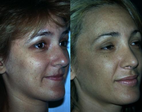 imagen de cirugia de nariz rinoplastia antes y despues clinica renacimiento madrid 5
