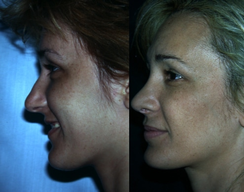 imagen de cirugia de nariz rinoplastia antes y despues clinica renacimiento madrid 9