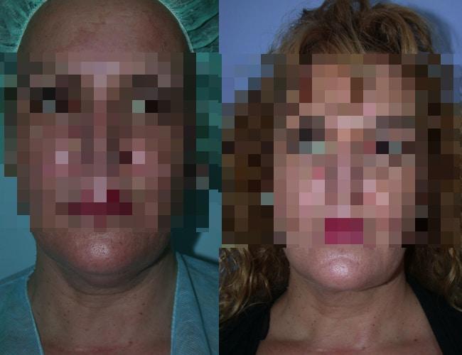 imagen de clinica renacimiento madrid Lipoescultura de papada caso real antes y despues 1