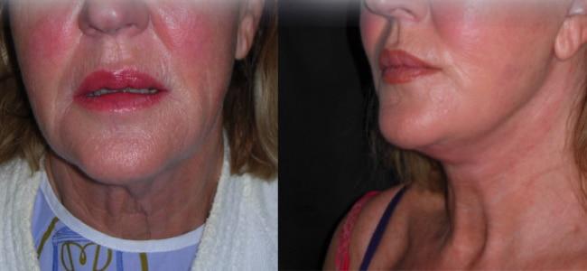 imagen de clinica renacimiento madrid lifting de cuello caso real antes y despues 1
