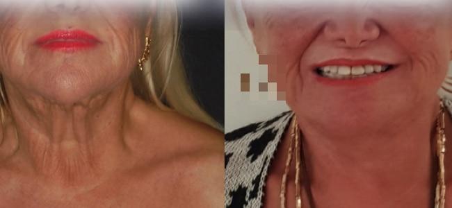 imagen de clinica renacimiento madrid lifting de cuello caso real antes y despues 2
