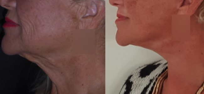 imagen de clinica renacimiento madrid lifting de cuello caso real antes y despues 3