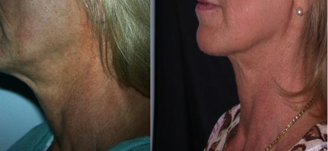 imagen de clinica renacimiento madrid rejuvenecimiento de cuello caso real antes y despues 3