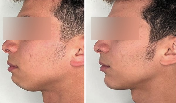 image of double chin mentoplasty real cases clinic renaissance madrid chin