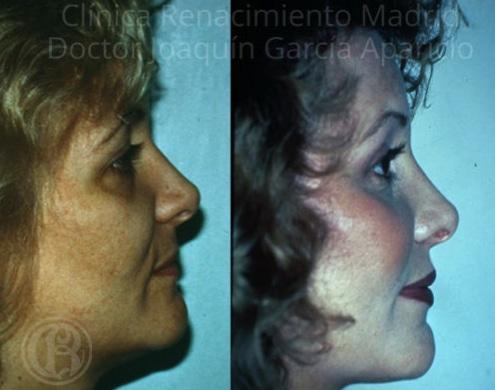 imagen de malaroplastia antes y despues clinica renacimiento madrid