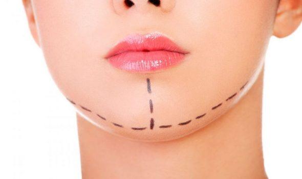 image of chin or mentoplasty clinic renaissance madrid