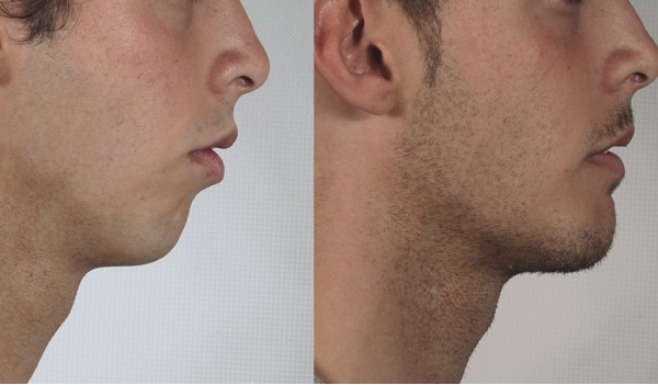 image of mentoplasty real cases clinic renaissance madrid menton