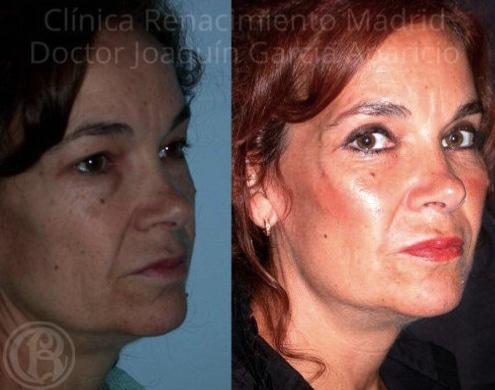 imagen de pomulos malaroplastia antes y despues clinica renacimiento madrid