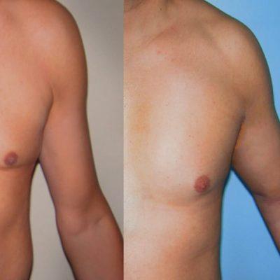 protesis de biceps renacimiento madrid 1