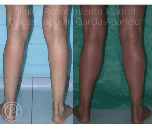 imagen de protesis de gemelos clinica renacimiento madrid