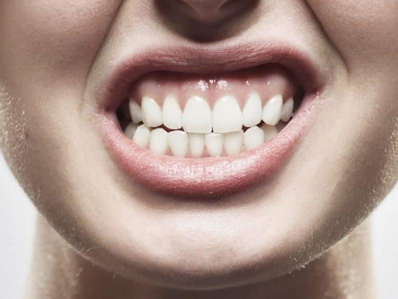 bruxismo medicina facial clinica renacimiento